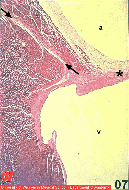 histology website resource  ha11  av valve  u0026 coronary sulcus